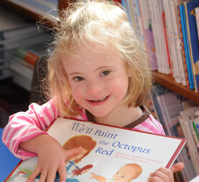 the rate and causes of downs syndrome in children Symptoms of down syndrome aren't the same for each person  the rate of  death for a person born with down syndrome during their first year.